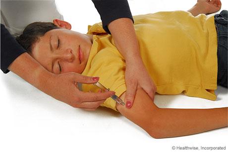 Cómo introducir la aguja en el brazo