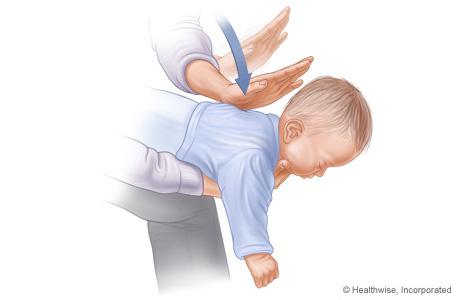 Imagen C: Posición del bebé sobre el brazo para la maniobra de Heimlich; se muestran la posición y la dirección de las palmadas en la espalda